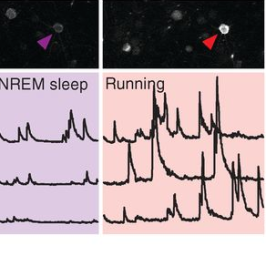 Many studies suggest that sleep enhances memory, with researchers demonstrating that sleep deprivation impairs motor learning and that the strength of learning-induced oscillations in the brain's electrical activity during deeper stages of sleep predicts future memory-based performance. But how does this all work at a cellular or circuit level? Yang et al. found that in mice taught a new motor task, sleep after learning promoted the formation of dendritic spines on specific neurons. As shown in the figure, neurons activated during learning of the motor task ('running,' red arrowhead) were reactivated later during non-rapid eye movement (NREM) sleep (blue arrowhead), and disrupting this neuronal reactivation prevented spine formation. In other words, reactivation during sleep of neurons activated by learning allowed the mice to form and keep the new dendritic spines, which may be a key physical correlate of memory storage. Image courtesy of Yang et al. (2014) Sleep promotes branch-specific formation of dendritic spines after learning. Science 344(6188). Reprinted with permission from AAAS.