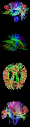 Multi-colored picture of the human brain from different angles depicting brain activity