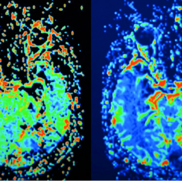 Interfering with glucose metabolism can impair cancer cells proliferation