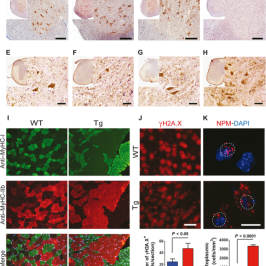Neurodegeneration in a sub-population of ALS patients is linked to expression of a retrovirus in humans